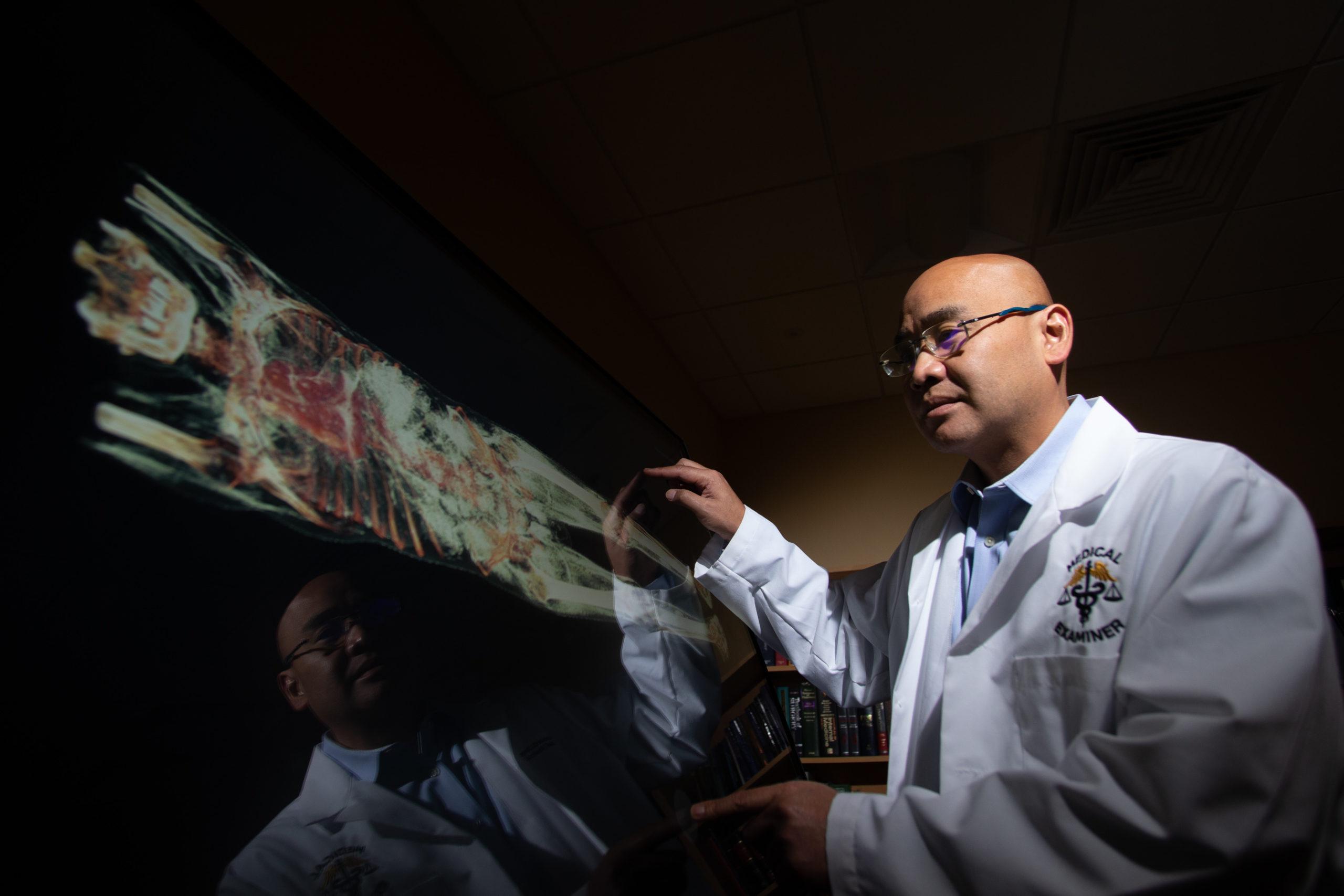 El Médico Forense del Condado de Orange, Dr. Joshua Stephany, hace una demostración del uso de la Mesa de Disección Anatómica Virtual Anatomage.